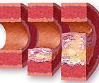 Холестерин в кровеносном сосуде