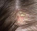 причины себорейного дерматита