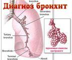 diagnoz_bronhita