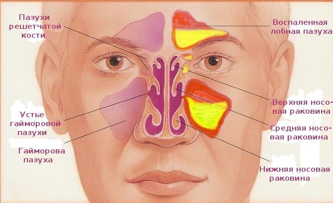 Нарушение пневматизации верхнечелюстных пазух носа лечение удалось