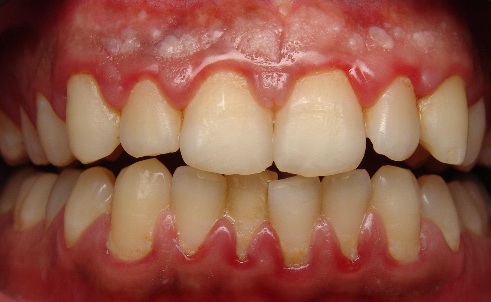 Болят зубы и дёсна чем лечить в