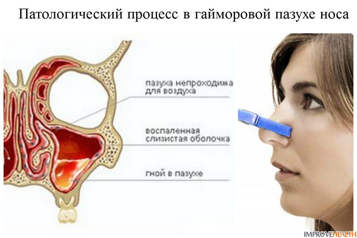 Неврапраксия