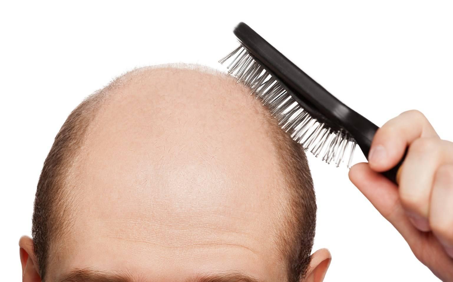 Выпадение волос и хеликобактер пилори