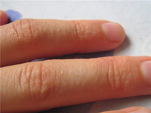 Сыпь на пальцах рук и ее лечение
