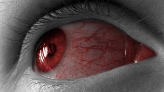 Аллергия под глазами! Что делать?