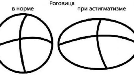 При астигматизме