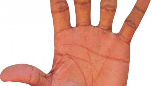 Экзема причины возникновения симптомы и лечение
