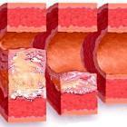 Диагноз атеросклероз