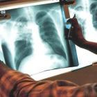 Дифференциальная диагностика туберкулеза