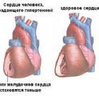 Здоровое и пораженное сердце
