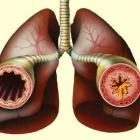 Изменения при бронхиальной астме