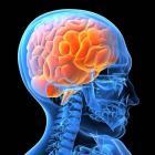 Фото 4 - Головной мозг