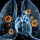 Вирусы в легких