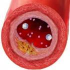 симптомы атеросклероза головного мозга могут привести к инсульту