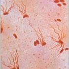 возбудитель тифа - кишечная инфекция бактерия Salmonella Tiphosa