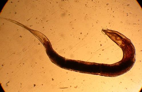 vaginalnie-parazit-ostritsa-kak-izlechit